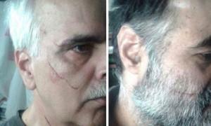 Saeed Razavi Faqih e Saeed Madani feriti al volto
